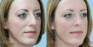 Patient 3b Before and After Rhinoplasty