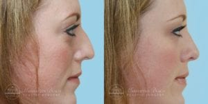 Patient 3c Before and After Rhinoplasty