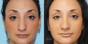 Patient 4a Before and After Rhinoplasty