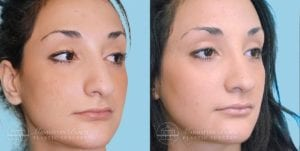 Patient 4b Before and After Rhinoplasty