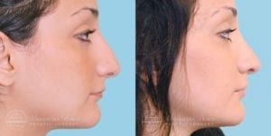 Patient 4c Before and After Rhinoplasty