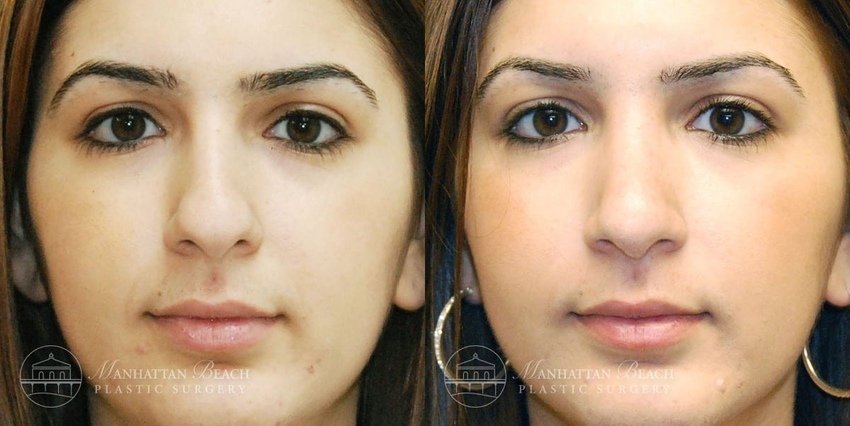 Patient 5a Before and After Rhinoplasty