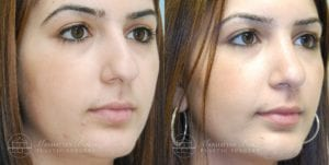 Patient 5b Before and After Rhinoplasty