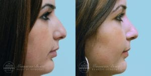 Patient 5c Before and After Rhinoplasty
