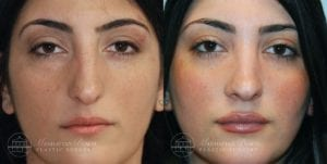 Patient 6a Before and After Rhinoplasty