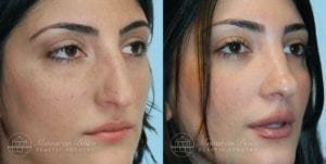 Patient 6b Before and After Rhinoplasty