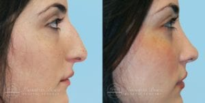 Patient 6c Before and After Rhinoplasty