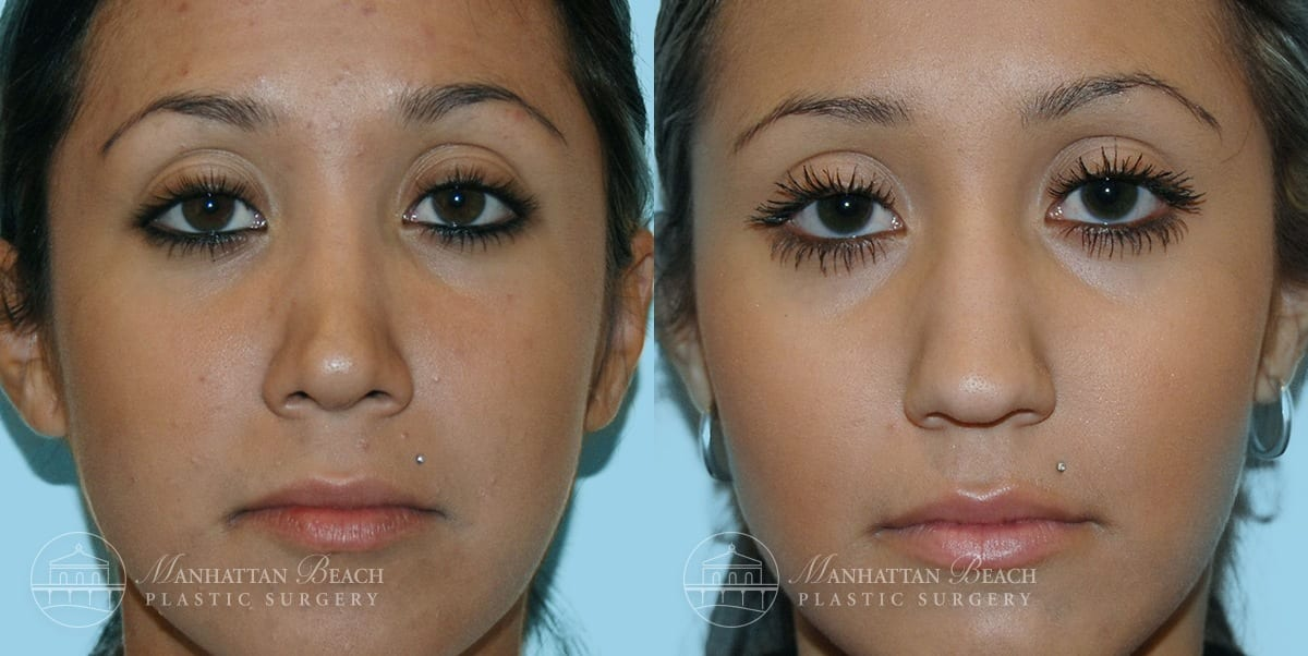 Patient 7a Before and After Rhinoplasty