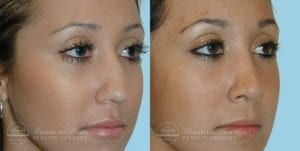 Patient 7b Before and After Rhinoplasty