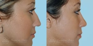 Patient 7c Before and After Rhinoplasty