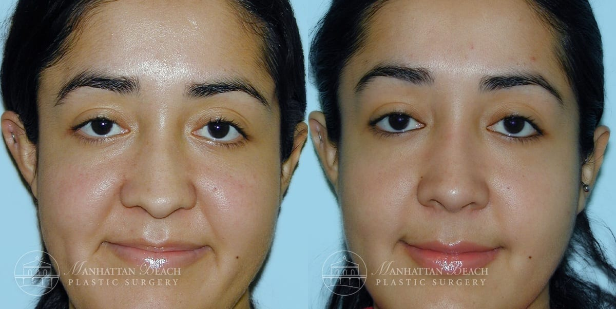 Patient 8a Before and After Rhinoplasty