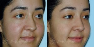 Patient 8b Before and After Rhinoplasty
