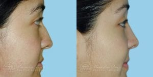 Patient 8c Before and After Rhinoplasty