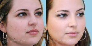 Patient 9b Before and After Rhinoplasty