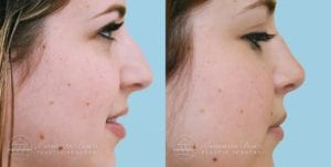 Patient 9c Before and After Rhinoplasty