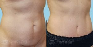 Patient 1b Tummy Tuck Before and After