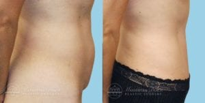 Patient 1c Tummy Tuck Before and After